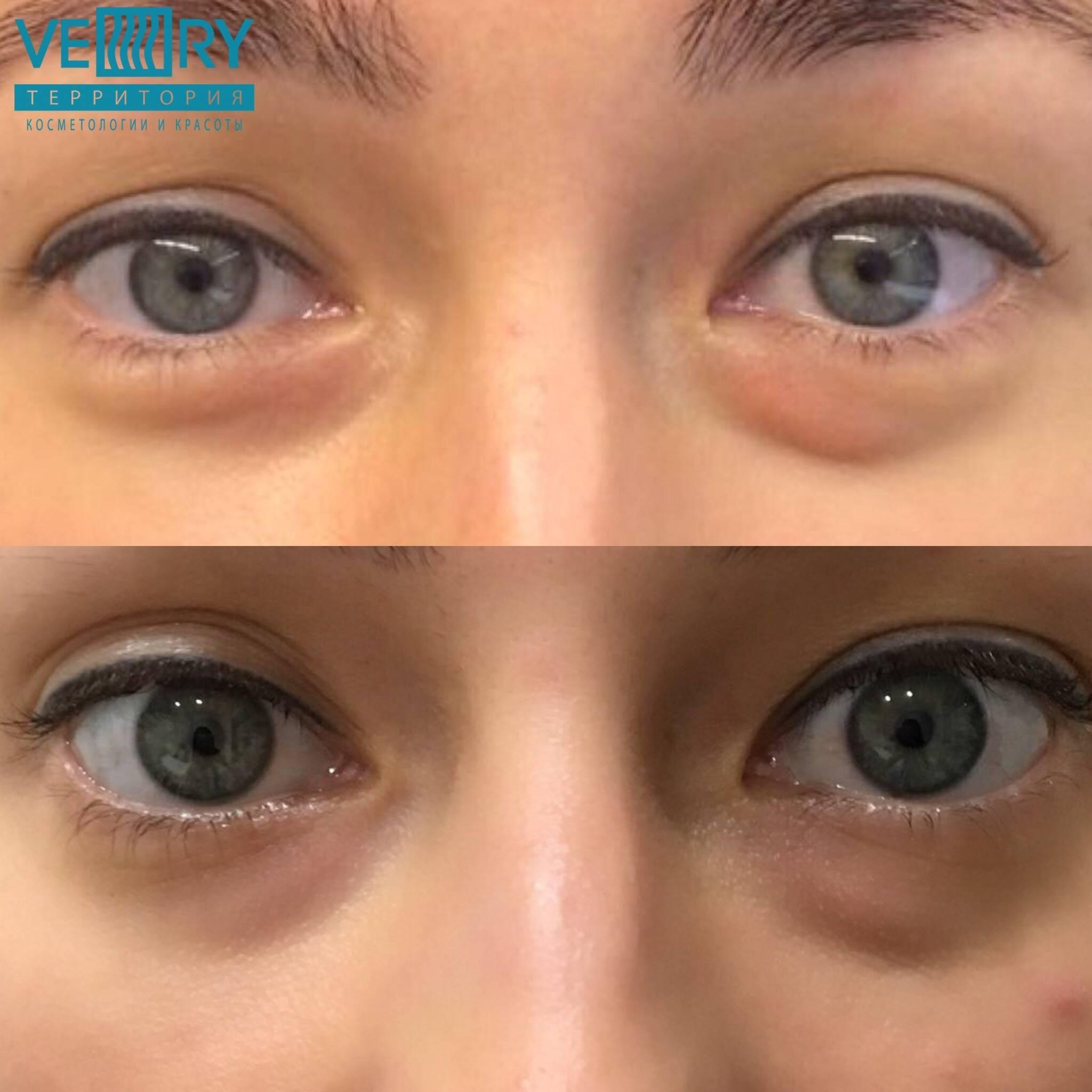 Dermaheal eyebag solution против мешков под глазами - wonderzone