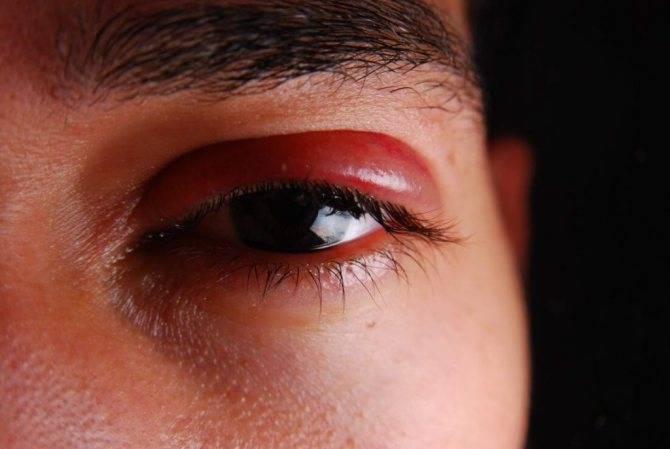 Почему опухает и болит верхнее веко глаза — причины и лечение