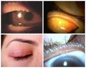 Мейбомит: лечение, причины, симптомы и осложнения, отличие мейбомита от ячменя