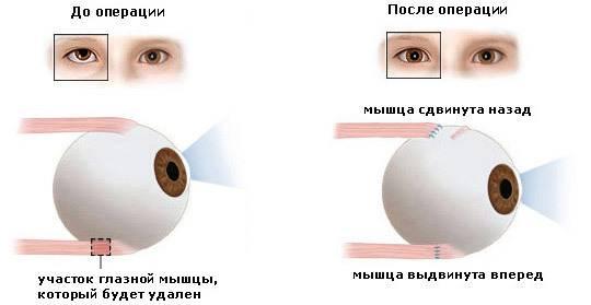 Лазерная коррекция косоглазия: виды операции и результат — глаза эксперт
