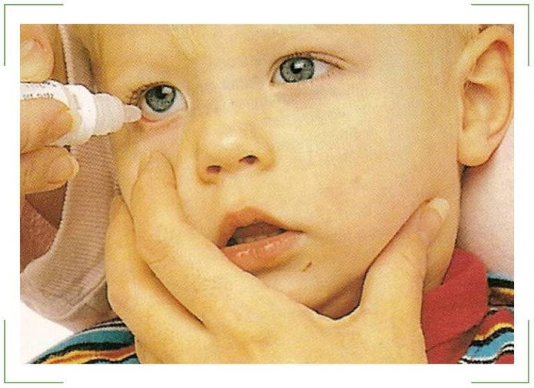 Лопнул сосуд в глазу у ребенка – причины, почему лопаются сосудики у новорожденного