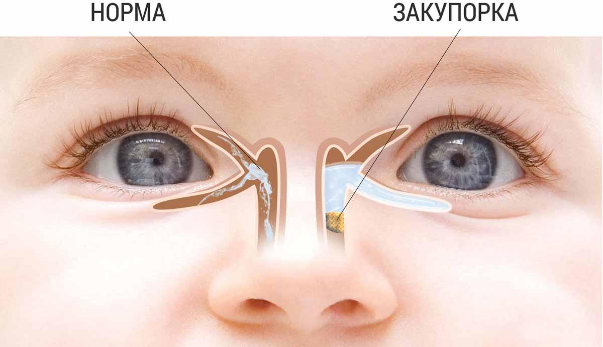 Всё о глазах новорождённого ребёнка