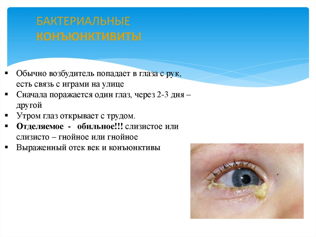Глазные болезни: список заболеваний глаз у человека, названия, фото, описания, симптомы, диагностика