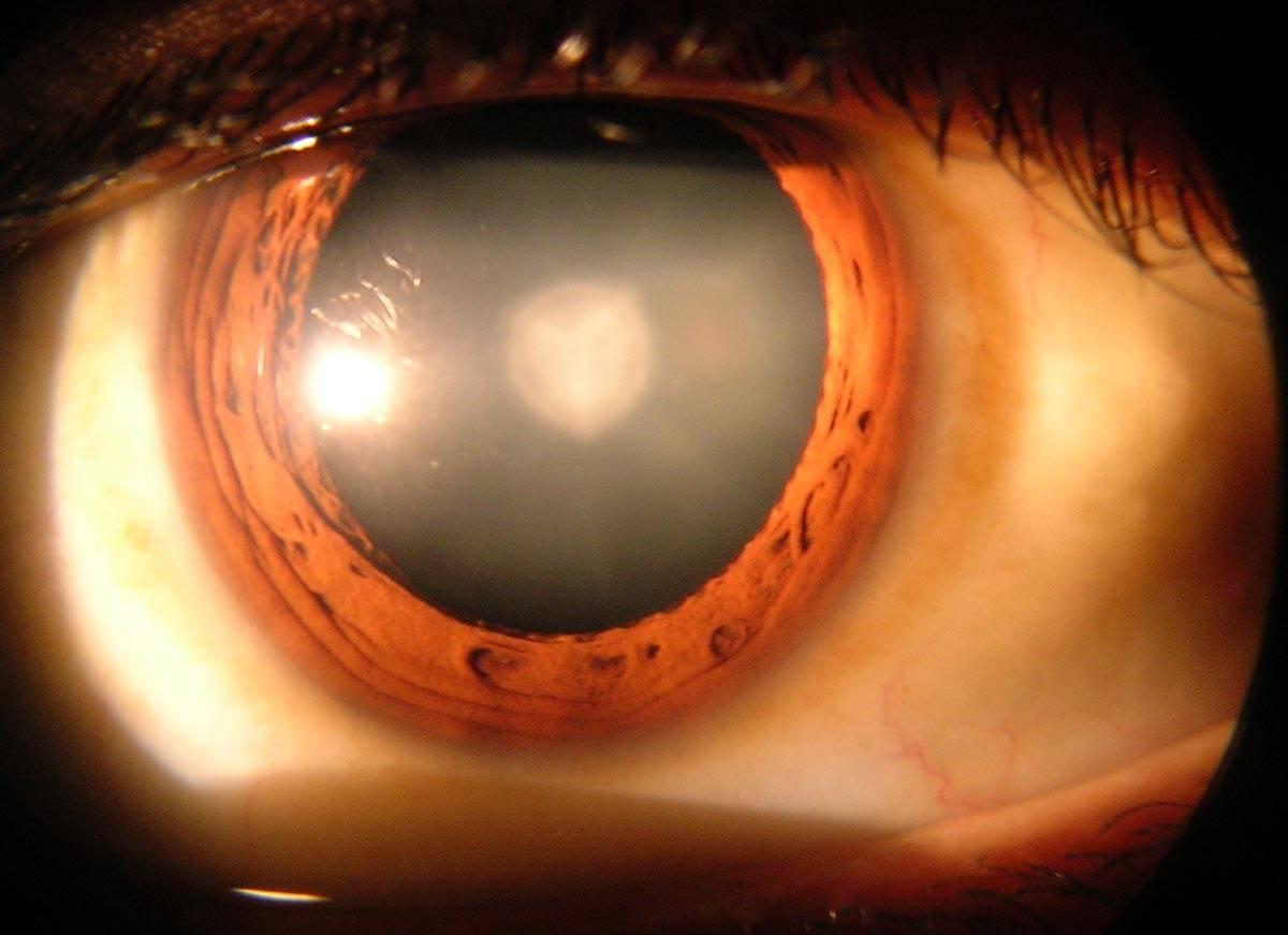 Как лечить катаракту лекарственными средствами: без операции?