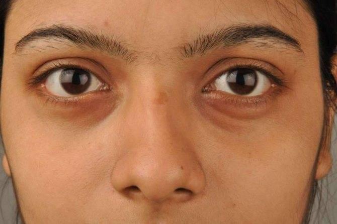 Медики рассказывают, как убрать темные круги под глазами: 5 способов