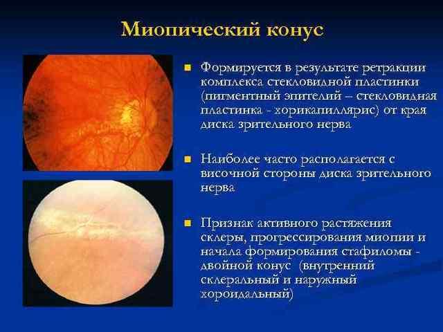 Миопическая стафилома: симптомы и лечение - медицина 2.0