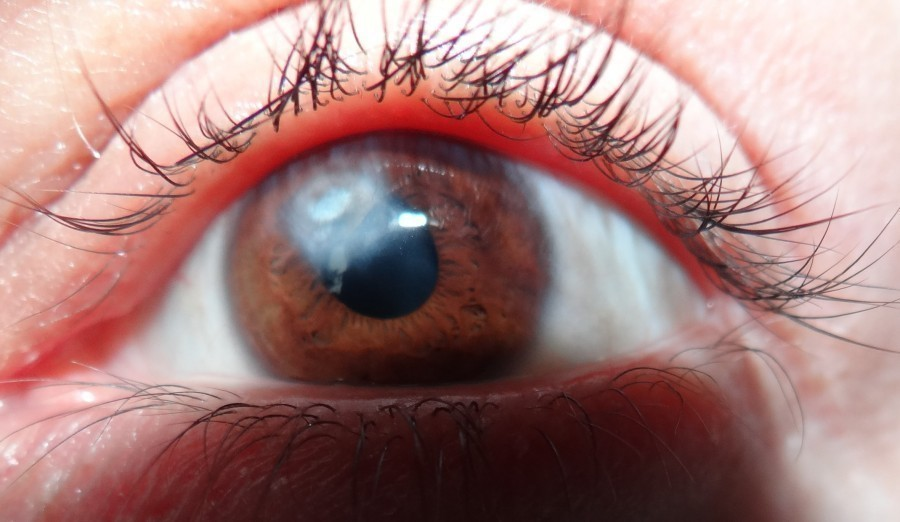Бельмо, лечение: как лечить на зрачке у людей, чем убрать с глаза человека, вылечат ли это в клинике, что такое кератопластика