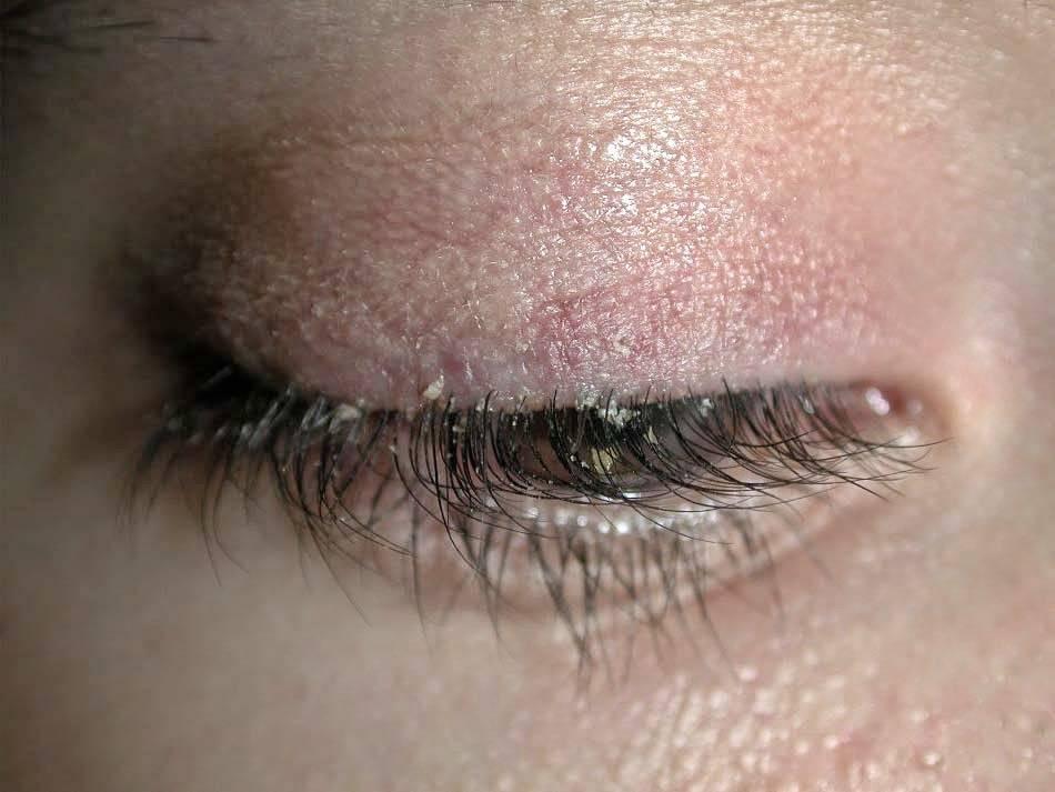 Демодекс глаз: симптомы и лечение глаз каплями
