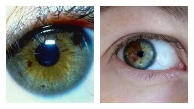 Звездочки в глазах: причины, характерные симптомы и лечение