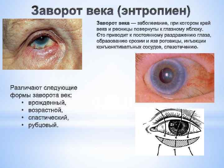 Энтропион, заворот века (entropium) - симптомы болезни, профилактика и лечение энтропиона, заворота века  (entropium), причины заболевания и его диагностика на eurolab