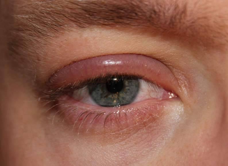 Причины нагноения и покраснения глаз, лечение и профилактика