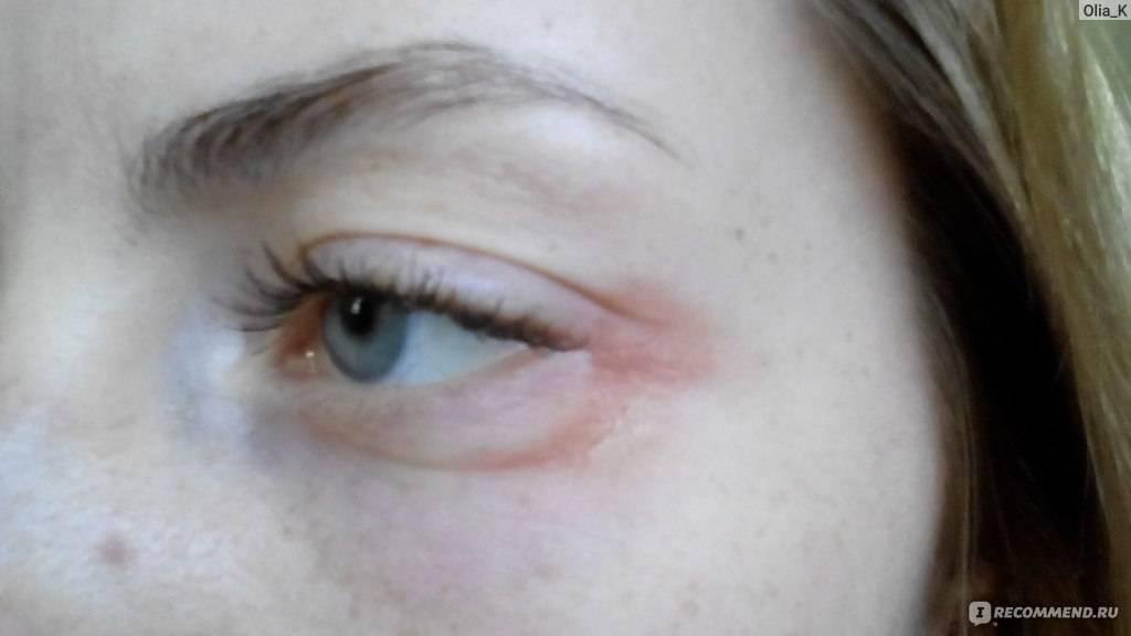 Как лечить аллергию на глазах — простые и действенные советы