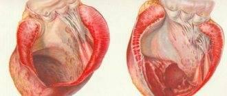 Ангиопатия сетчатки при беременности. какие роды при этой болезни?