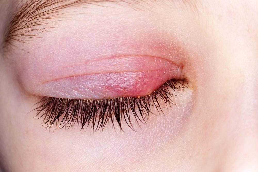 Ячмень на глазу заразен - медицинское название болезни на глазу, как называется по медицински, в медицине по научному, как передается