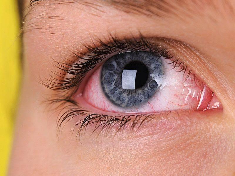 Глаза и нос чешутся: причины, лечение, советы аллергологов, отзывы - sammedic.ru