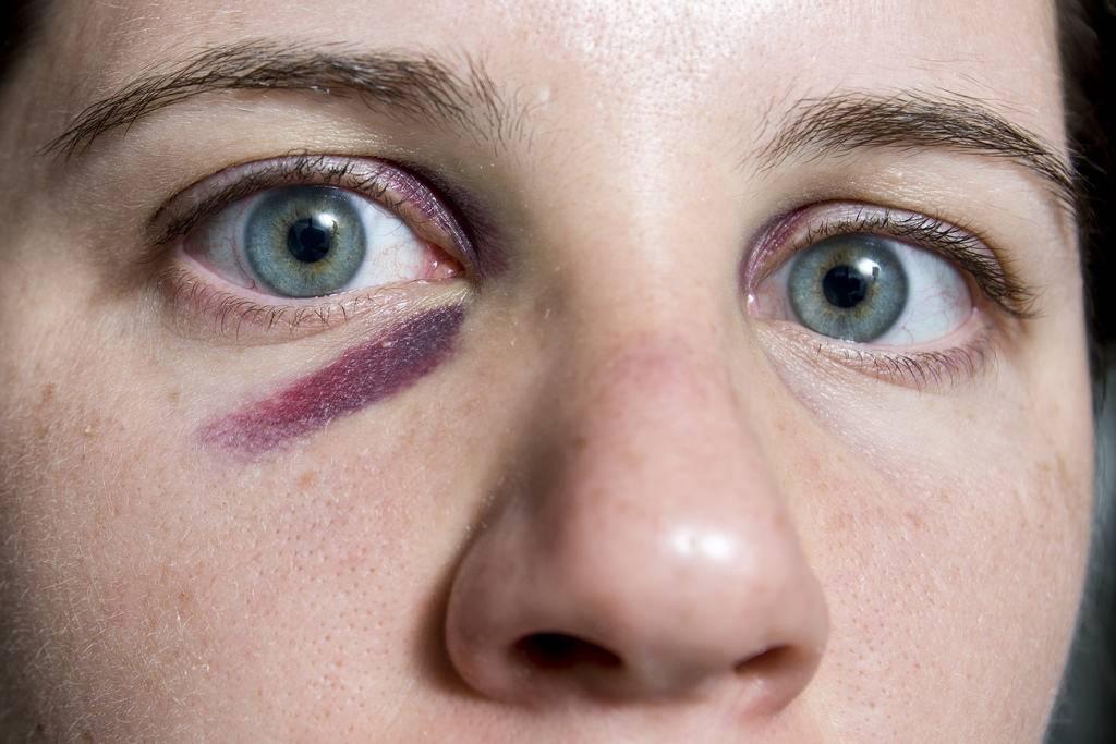 Как убрать синяки и круги под глазами: домашние средства | wmj.ru
