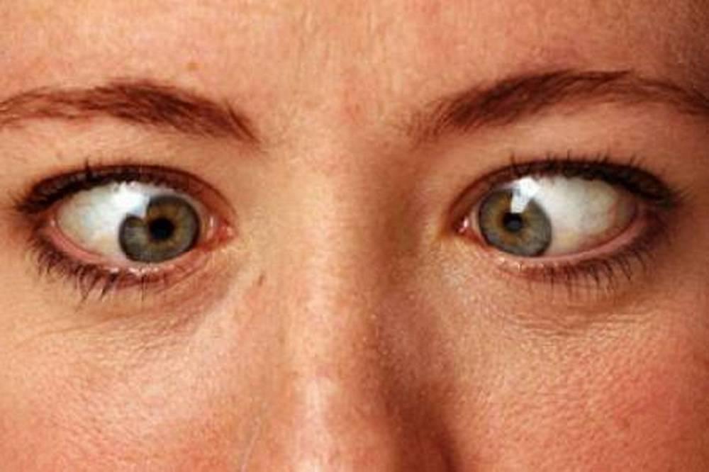 Почему один глаз больше другого и как это исправить: причины, лечение