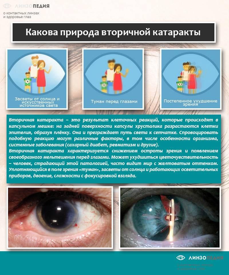 Катаракта - симптомы, диагностика, лечение