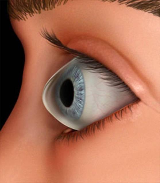 Кератоконус глаза: причины возникновения, симптомы, лечение и профилактика