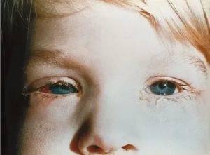 Что делать, если по утрам отекают глаза: причины и эффективное лечение