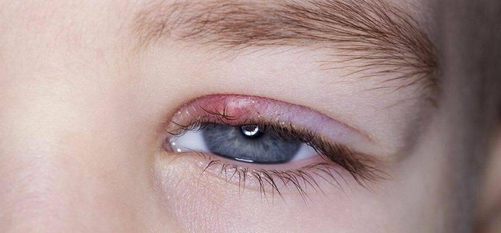 3 наиболее эффективных способа лечения ячменя у годовалого ребенка