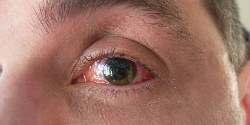 Микрофтальм: причины, симптомы и лечение