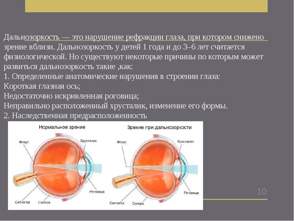 Рефракция глаза - что это, виды, диагностика нарушений, лечение