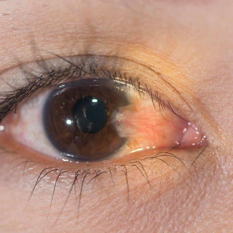 Болит половина лица и глаз продуло что делать - все советы медика