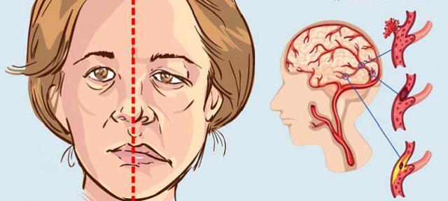 Второй инсульт: последствия, прогноз, что делать, реабилитация | компетентно о здоровье на ilive