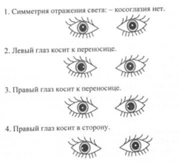 Амблиопия: почему глаза становятся ленивыми и как им помочь - лайфхакер