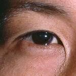 Эпикантус: что это такое, характерные признаки у монголоидной расы, наличие складки у ребенка, лечение, профилактика, осложнение