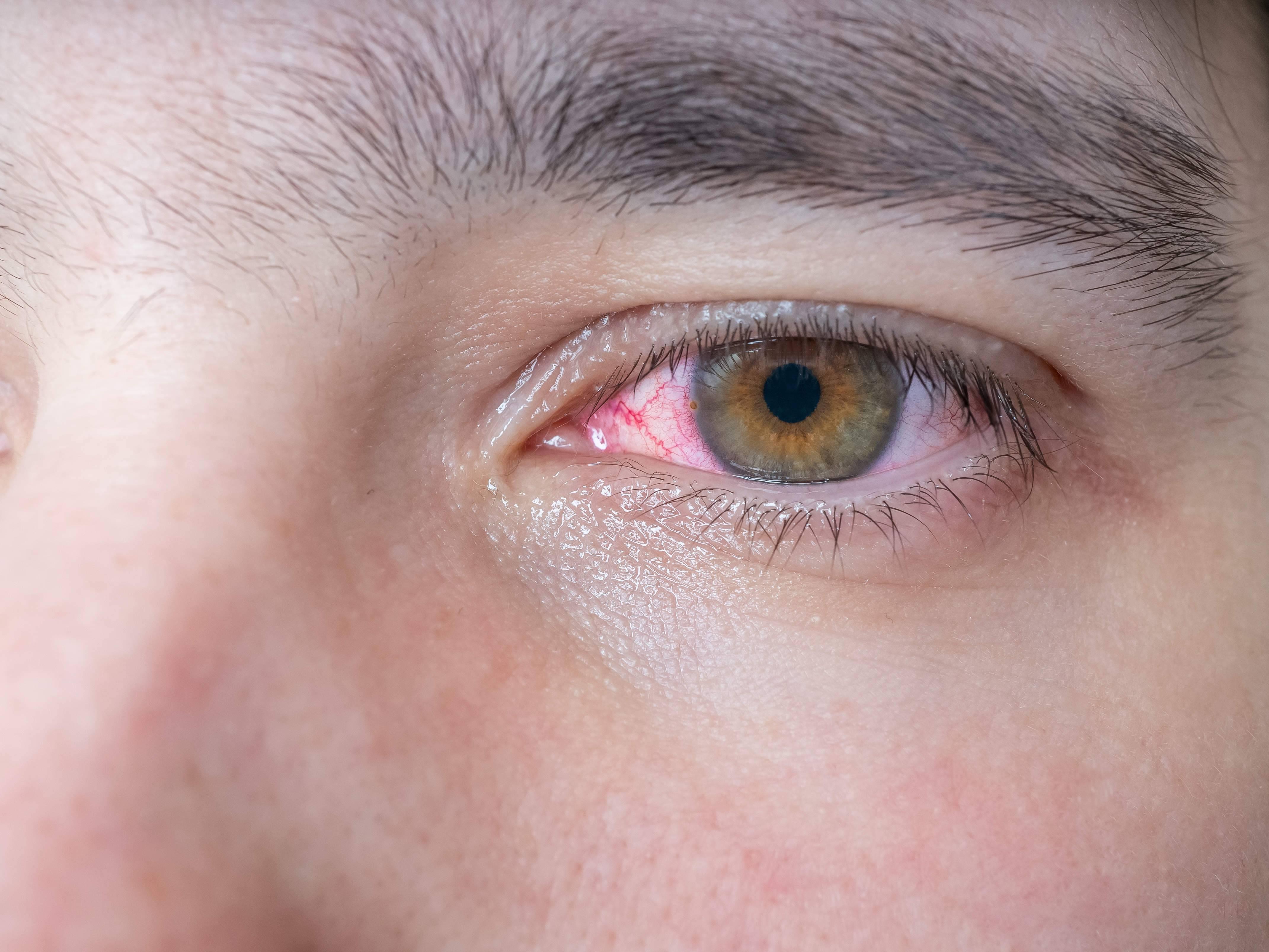Слезится глаз у взрослого: что делать, если слезы из одного органа, как и почему лечить его у человека, причины, лечение каплями