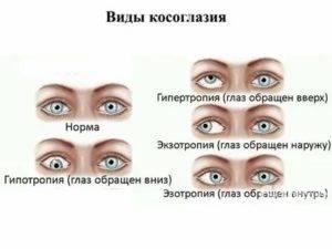 Операция по исправлению косоглазия (страбизма): виды, методы лечения и коррекции – глазная клиника новый взгляд