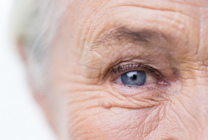Глаукома: как избежать слепоты в пожилом возрасте?