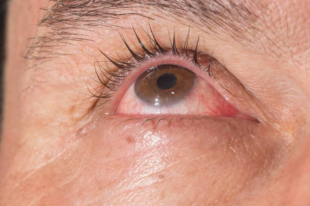 Если глаза покраснели, начали закисать, можно заподозрить конъюнктивит