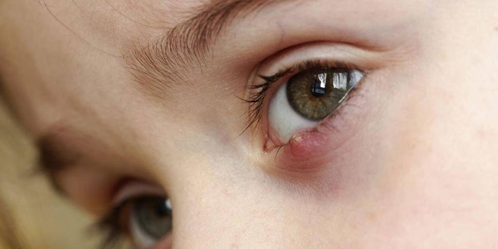 Почему возникает киста на глазу, методы удаления и профилактики
