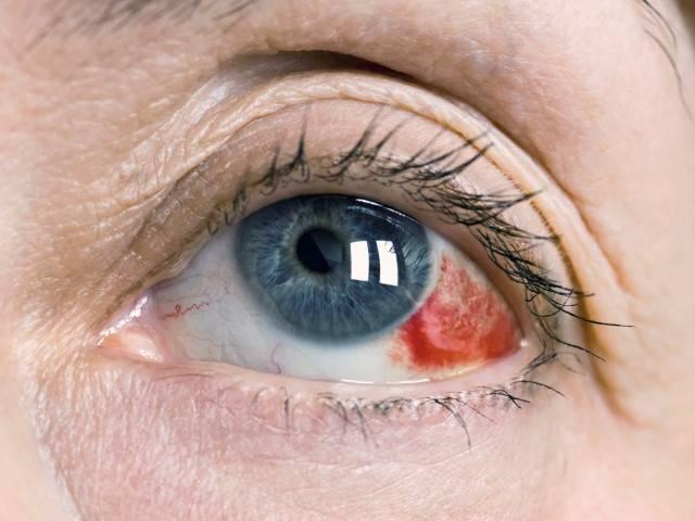 Кровоизлияние в глаз: что значит, что делать и как лечить кровоподтек в склеру, причины и симптомы, ответы офтальмологов, кровь после удара