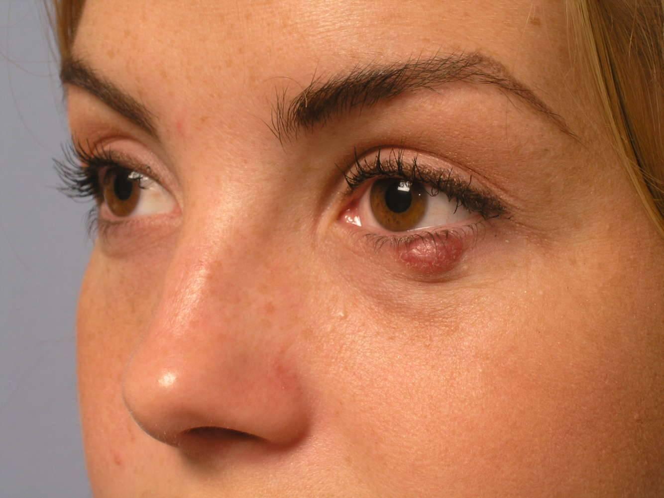 Халязион верхнего века – причины, симптомы и лечение. удаление халязиона на верхнем веке