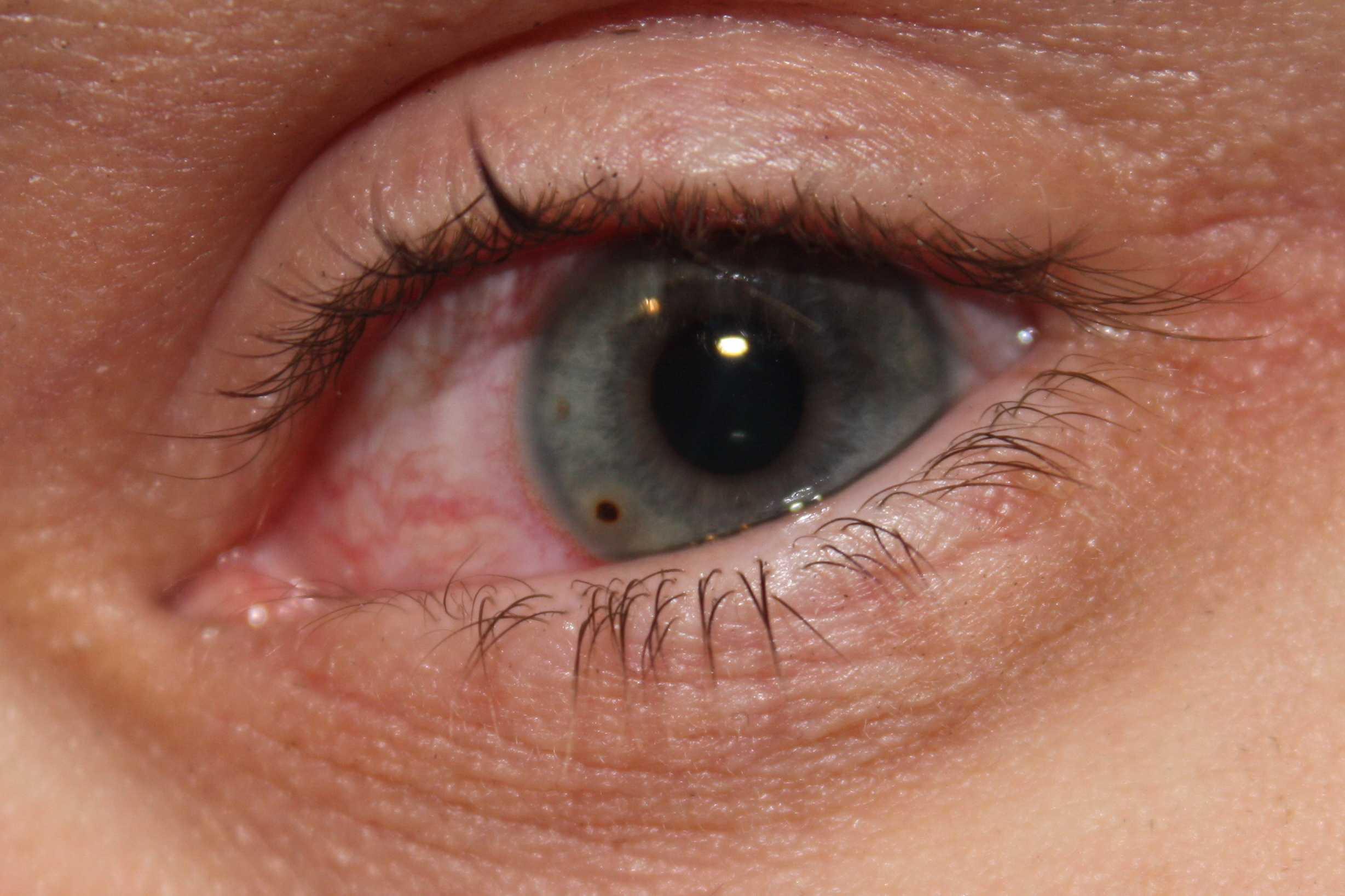 Мутно видит половина глаза после удаления металической стружки - вопрос офтальмологу - 03 онлайн