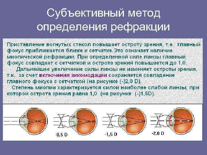 Рефракция глаза: виды, нарушения и определение