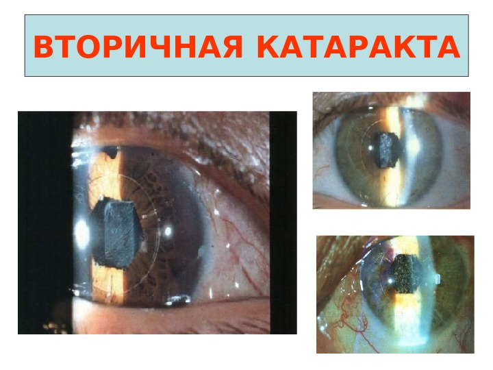 Лечение фиброза задней капсулы хрусталика глаза