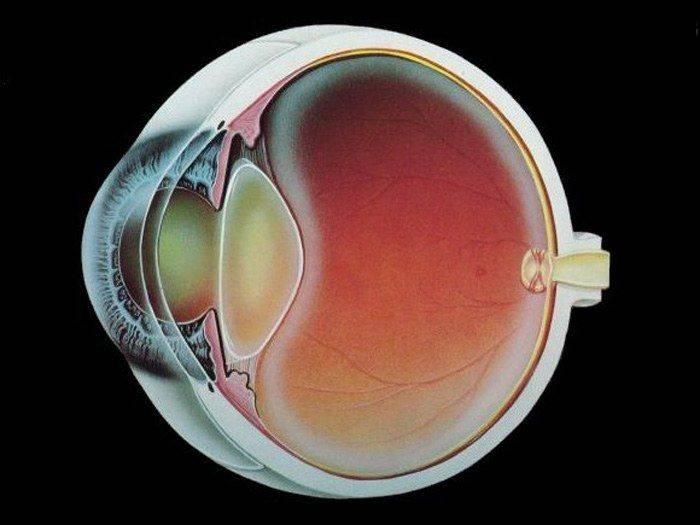 Близорукость после операции катаракта