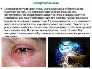 Что делать, если болят глаза от сварки