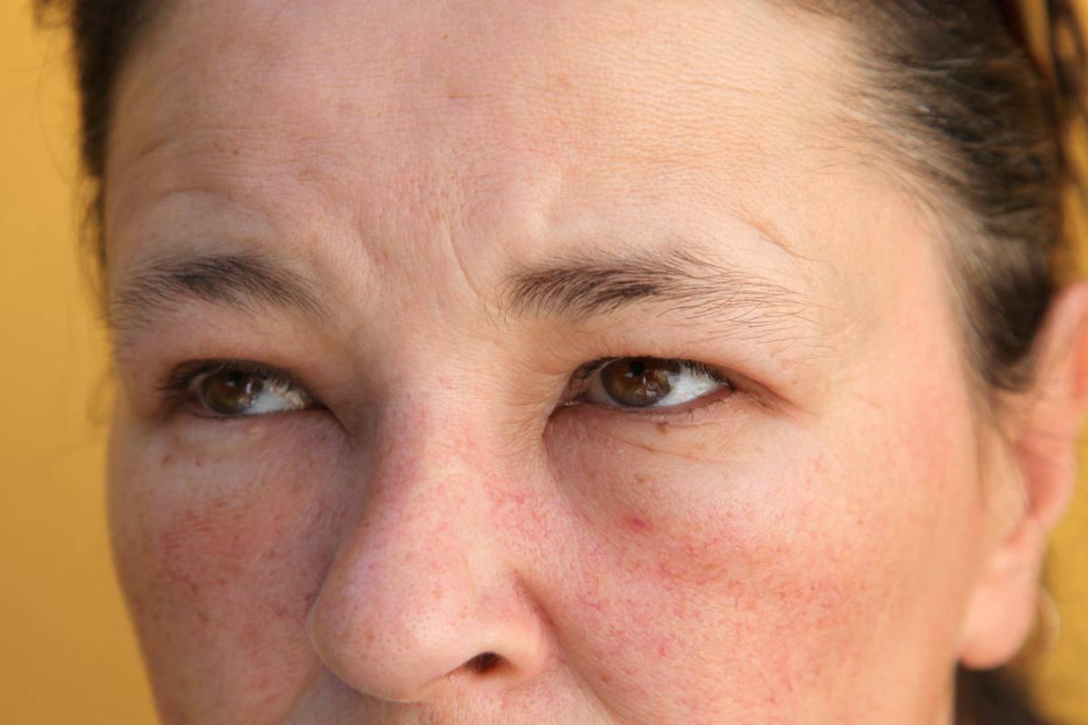 Как снять отек горла при аллергии — allergich.com