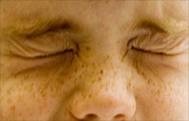 Блефароспазм лечение народными средствами, профилактика