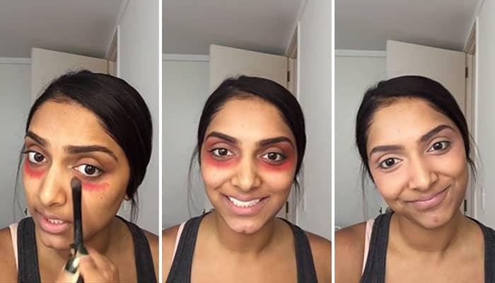 Как убрать синяки под глазами: лучшие средства для использования в домашних условиях