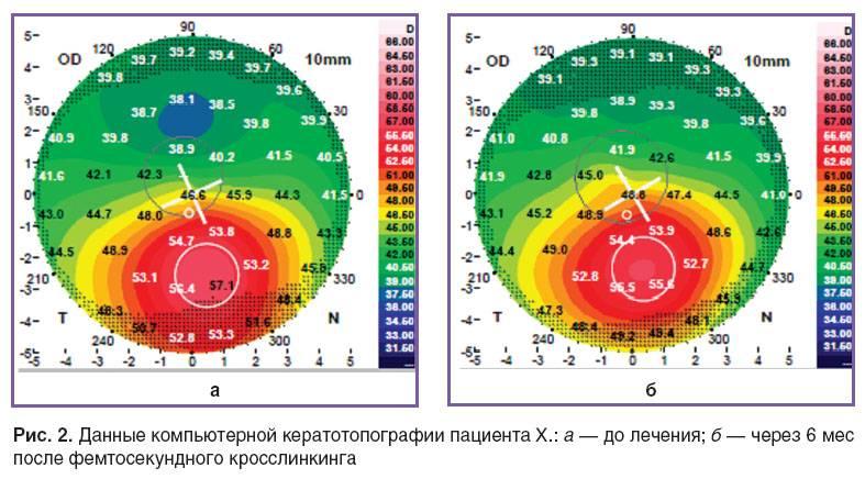 Рефрактометрия глаза