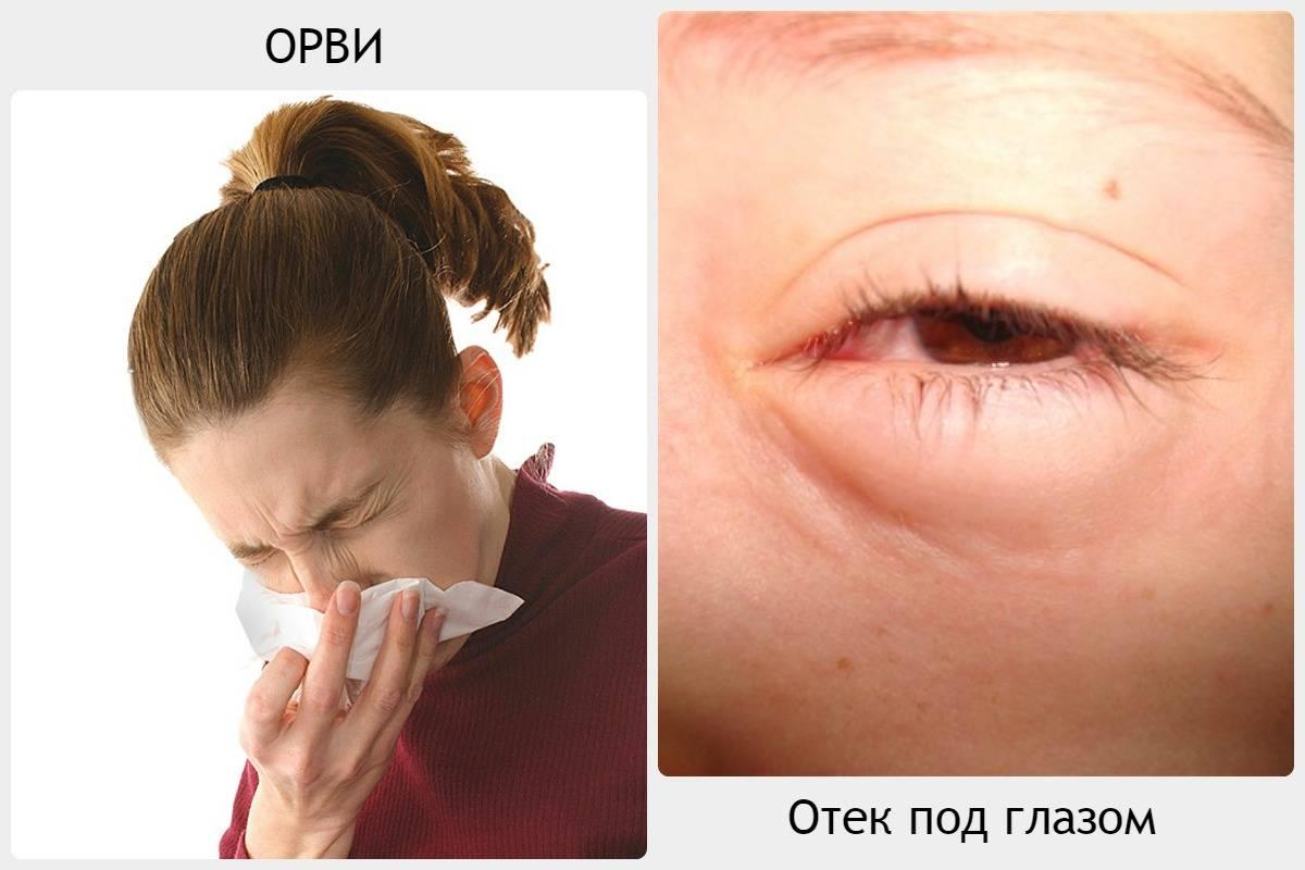 Боль в глазу при движении глазного яблока: причины и методы лечения - здоровое око