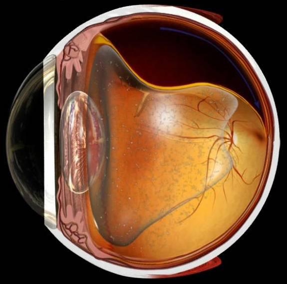 Разрыв сетчатки глаза: причины, симптомы, последствия и лечение