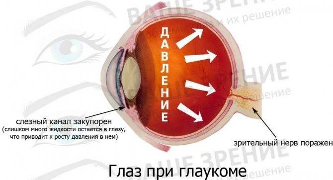 Помутнение в глазах: причины и методы лечения oculistic.ru помутнение в глазах: причины и методы лечения